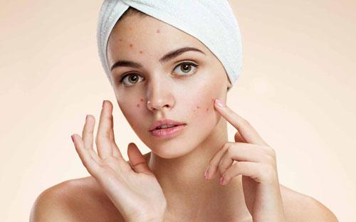 Pimples Problem
