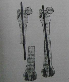 Teknik Operasi Fraktur Pelvis, Femur, dan Tibia-Fibula pada Hewan (Bedah Fraktur)