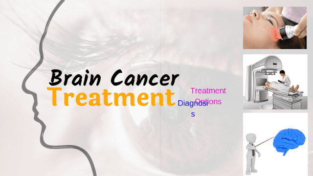 Brain Cancer: Diagnosis & Treatment Options for Brain Tumors