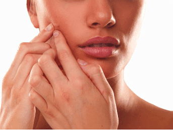 pimples_acne_remedies