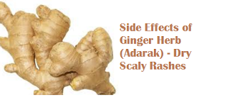 Side Effects of Ginger Herb (Adarak) - Dry Scaly Rashes