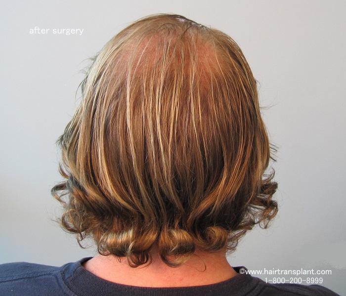 Save your hair! Take a DHT Blocker