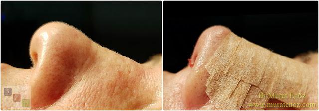 Açık teknik burun ucu estetiği - Burun ucu kaldırma - Burun kaldırma - Burun ucu operasyonu öncesi ve sonrası - Burun ucu düşüklüğü tedavisi - Burun ucu estetiği ameliyatı izle - Burun ucu estetiği öncesi ve sonrası görselleri - Açık teknik burun ucu operasyonu - Nose tip lifting in İstanbul - Nose tip plasty operation in İstanbul - Tip plasty in İstanbul - Nose tip reshaping in İstanbul - Nose tip surgery in Turkey - Open technique tip plasty operation in İstanbul - Burun ucu estetiği Bakırköy - Burun ucu küçültme - Burun ucu daraltma