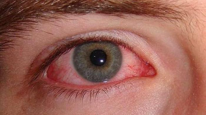 Obat Herbal Mata Merah 100% Alami