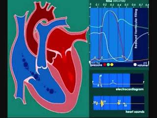 Cardiopatías y el sexo