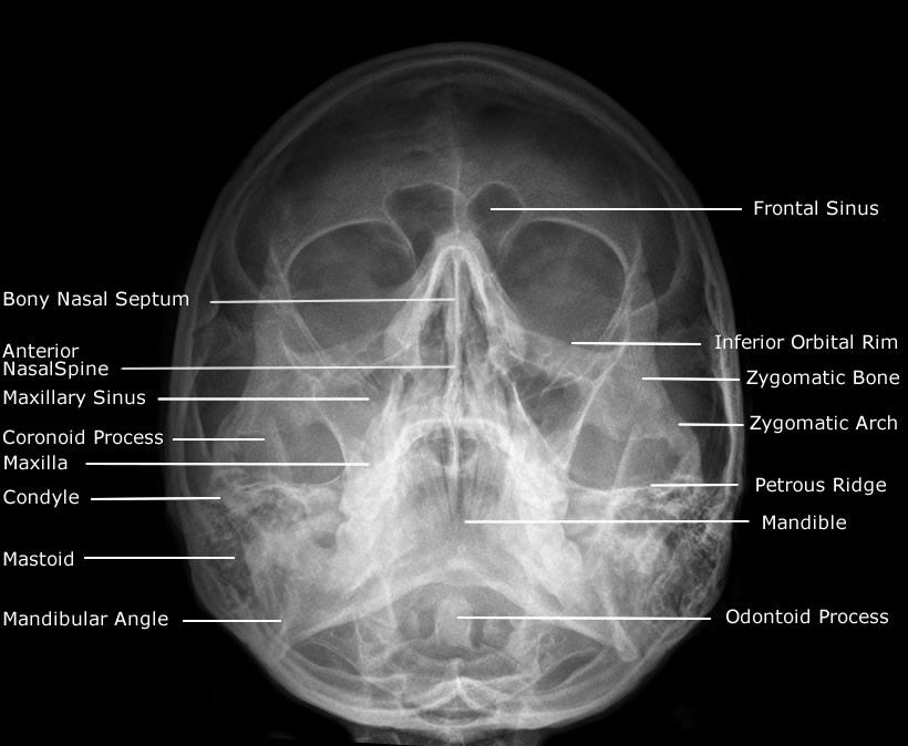 Dentistry lectures for MFDSMJDFNBDEORE RadiographicX Ray Skull Views