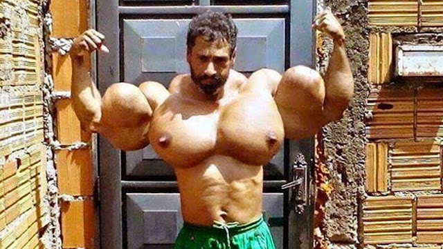 Ridiculous SYNTHOL BOOBS Bodybuilder
