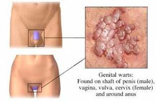 penis tumbuh bintil daging