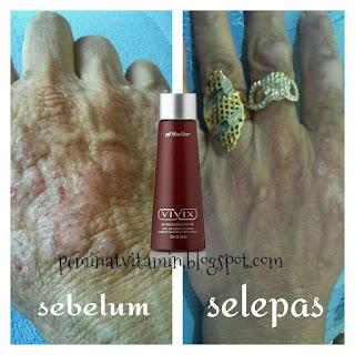 rawat eczema dengan ikhtiar vivix