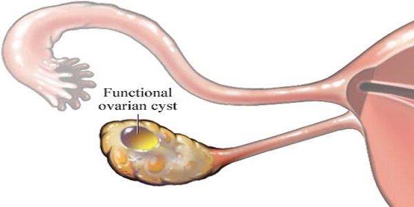 ovarian-cyst