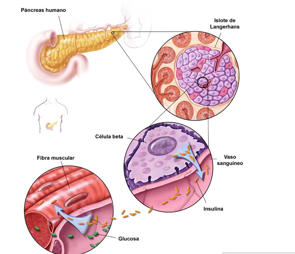 factores medioambientales de diabetes tipo 1