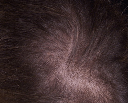 Cara mengatasi masalah Kerontokan rambut