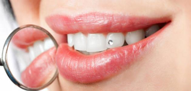 كيف تحصلين علي اسنان بيضاء
