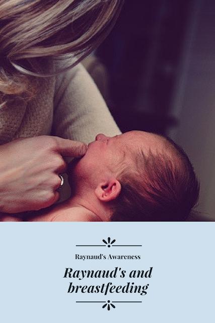 Raynaud's and breastfeeding