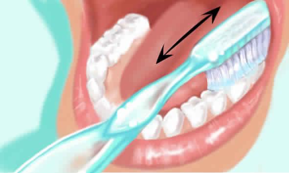 غسل الأسنان بقوة بالفرشاة يسبب تلفها