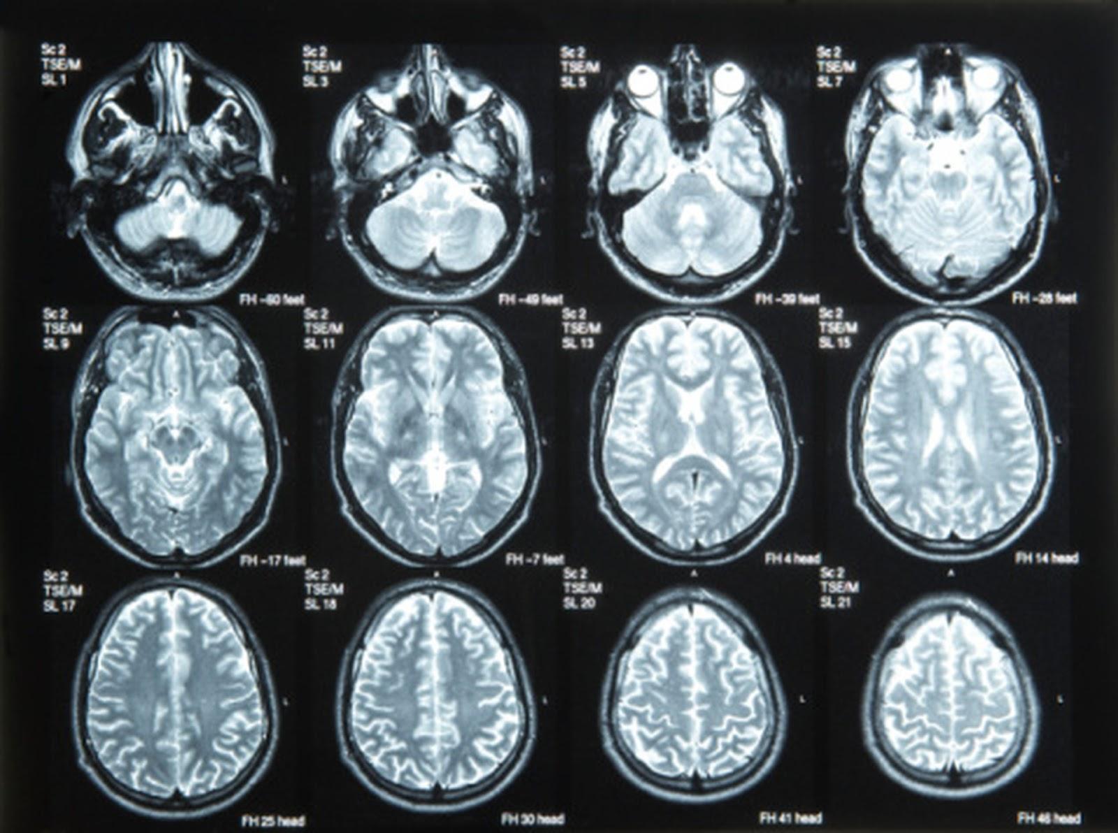 Tomar suplementos de cálcio causa lesões cerebrais