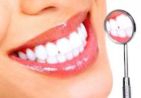 Cara Memutihkan Gigi Alami dan Terampuh 30+ Lengkap Beserta Penjelasannya