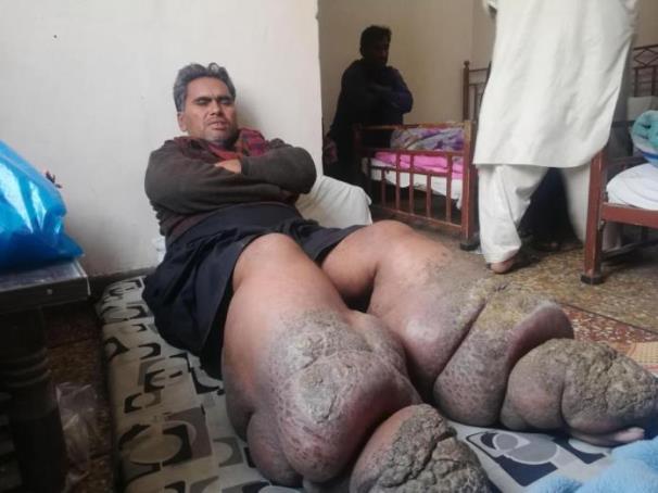 بالفيديو: بعوضة تقعد رجل باكستاني 5 سنوات وتصيبه بداء الفيل!