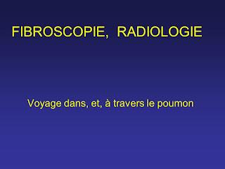 FIBROSCOPIE.RADIOLOGIE .pdf