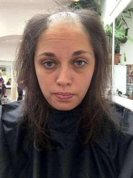 Suburkan Rambut Cukup Dengan 2 Bahan Dapur