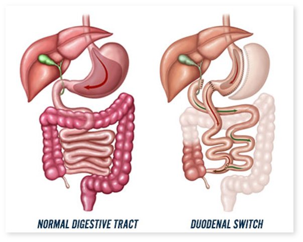 Switch-ul duodenal este eficient? Pot aparea complicatii?
