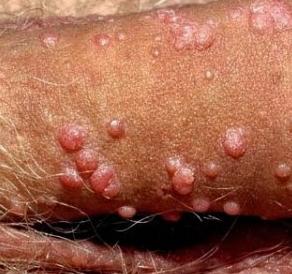 Tumbuhan Anti Virus Kutil Kelamin Dalam Tubuh