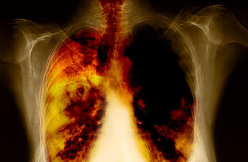 lung cancer — category