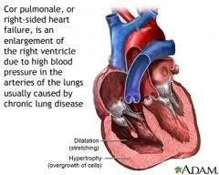 image-right-ventricular-hypertrophy-corpulmonale