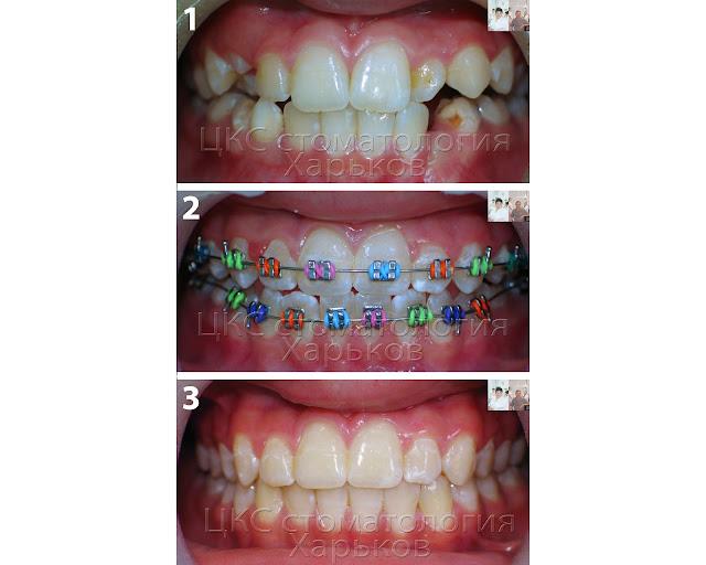Прикус до и после проведения раннего ортодонтического лечения