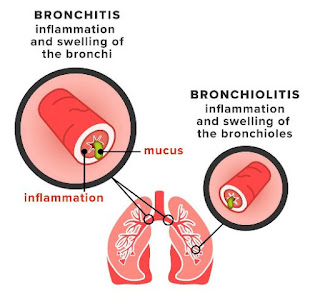 Bronchiolitis, The Bronchitis Version in Infant