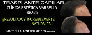 trasplante pelo Clínica Estética  injertos cabello para mujeres  or hombres o Marbella y en Málaga: Te proponemos la mayor calidad de nuestroservicio con los mejores