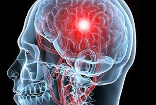 ΠΡΟΣΟΧΗ – ΚΙΝΔΥΝΟΣ! Αυτό είναι το ΓΛΥΚΟ, που ΚΥΡΙΟΛΕΚΤΙΚΑ σου προκαλεί κατευθείαν εγκεφαλικό