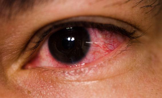 وصفات طبيعية لعلاج احمرار العين