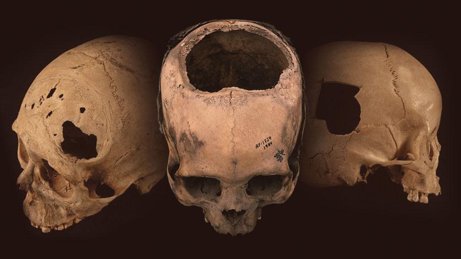 Cráneos antiguos trepanados procedentes de Perú. Foto: University of Miami.