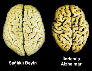 Alzheimer Evreleri
