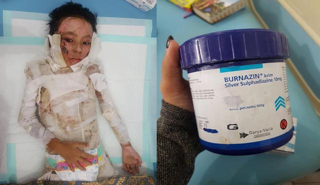 Kejam, Seorang Ibu Bakar Anak Kandungnya Sendiri Menggunakan Cairan Mudah Terbakar