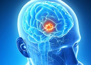 Natural Cure Brain Cancer and Foods to Avoid