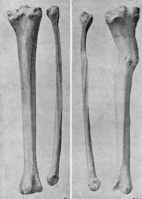 Ossos de Pieter De Rudder após a autopsia