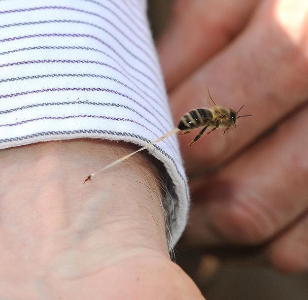 صورة لعملية لسعة النحل