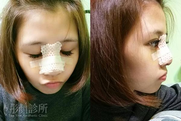 彤顏診所-隆鼻-立體結構式隆鼻-3段鼻雕-卡麥拉隆鼻-蒜頭鼻-韓式隆鼻-整形外科-縮鼻翼-鼻膜-鼻頭