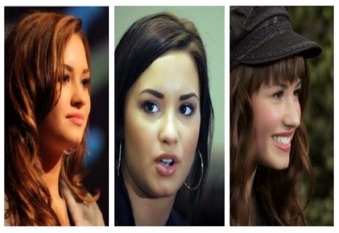 Demi Lovato Teeth Before After | www.pixshark.com - Images ...