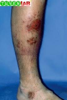 Fig. 5.37 Nummular eczema