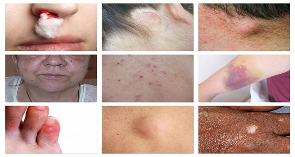 cancer facial simptome