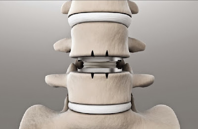 Lumbar Artificial Disk Replacement