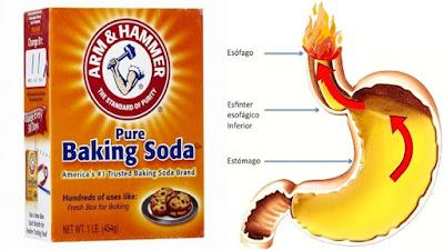 Cómo Utilizar Bicarbonato De Sodio Para Tratar Y Prevenir El Reflujo Ácido