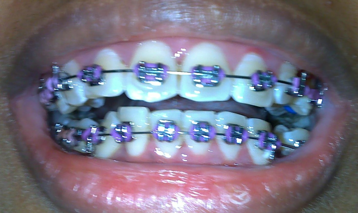 The gallery for --> Light Pink Braces For Teeth
