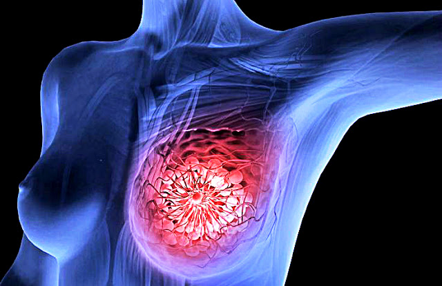 Scientists in Amsterdam Just Killed Breast Cancer Tumors In 11 Days With New Therapy