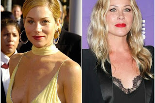 Actress, Christina Applegate Removes Her Ovaries And Fallopian Tubes To Prevent Cancer