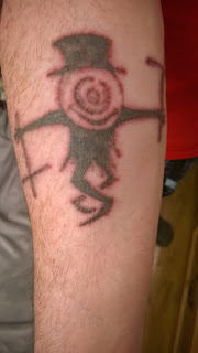Tattoo after q-switched laser session, pretty swolen and burned looking