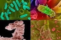 obat infeksi saluran kencing, obat infeksi saluran kemih, mengobati infeksi saluran kencing, mengatasi infeksi saluran kencing, menyembuhkan infeksi saluran kencing, cara ampuh mengobati infeksi saluran kencing, Cara ampuh menyembuhkan infeksi saluran kencing, penyebab infeksi saluran kencing, gejala infeksi saluran kencing, gonore, gonoru, kencing nanah, kencing bernanah, sipilius, raja singa, penyakit menular sekssual, keputihan, kista, miom, kanker serviks.